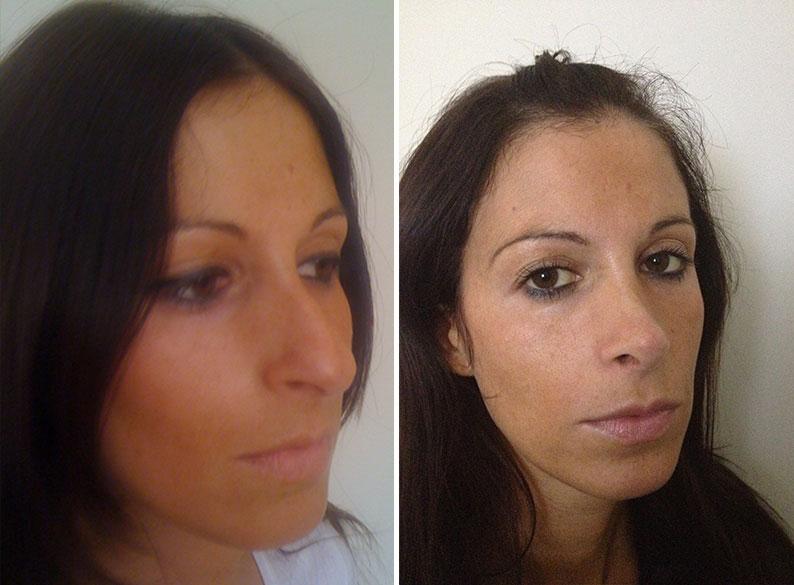 Prima e dopo l'operazione